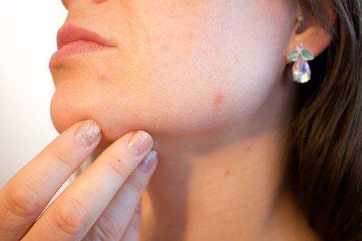 leczenie trądziku szczecin